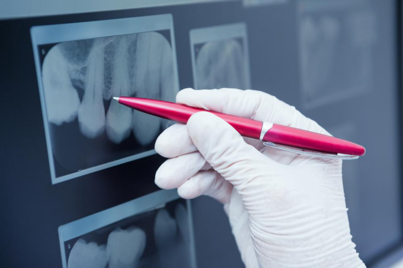 Are You Visiting Your Teeth Filling Dentist Regularly? Find Out Why You Should