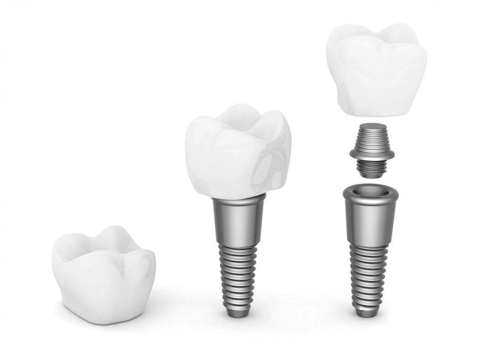 Image showing tooth implants