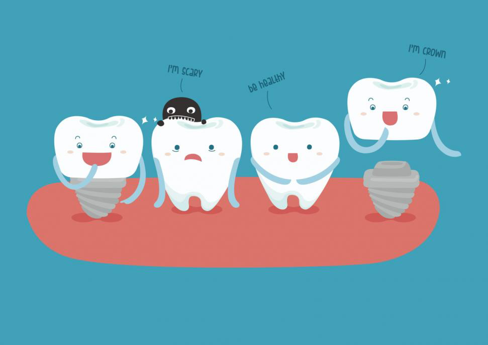 Everything you need to Know about Tooth Dental Implants