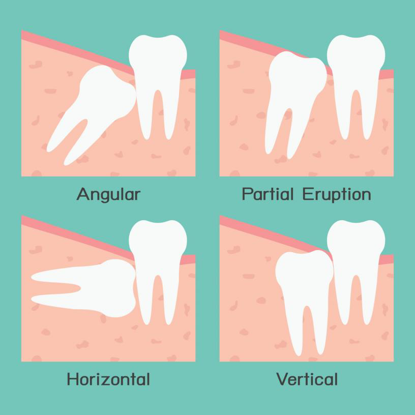 Image showing Wisdom tooth Extraction Aldie