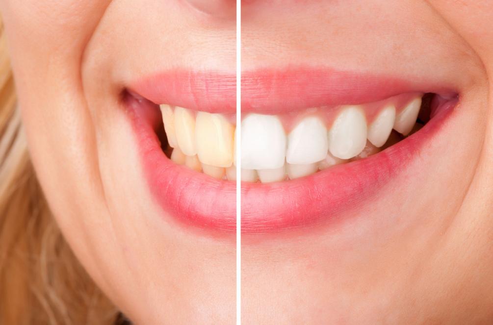 Picture showing Aldie Teeth Bleaching