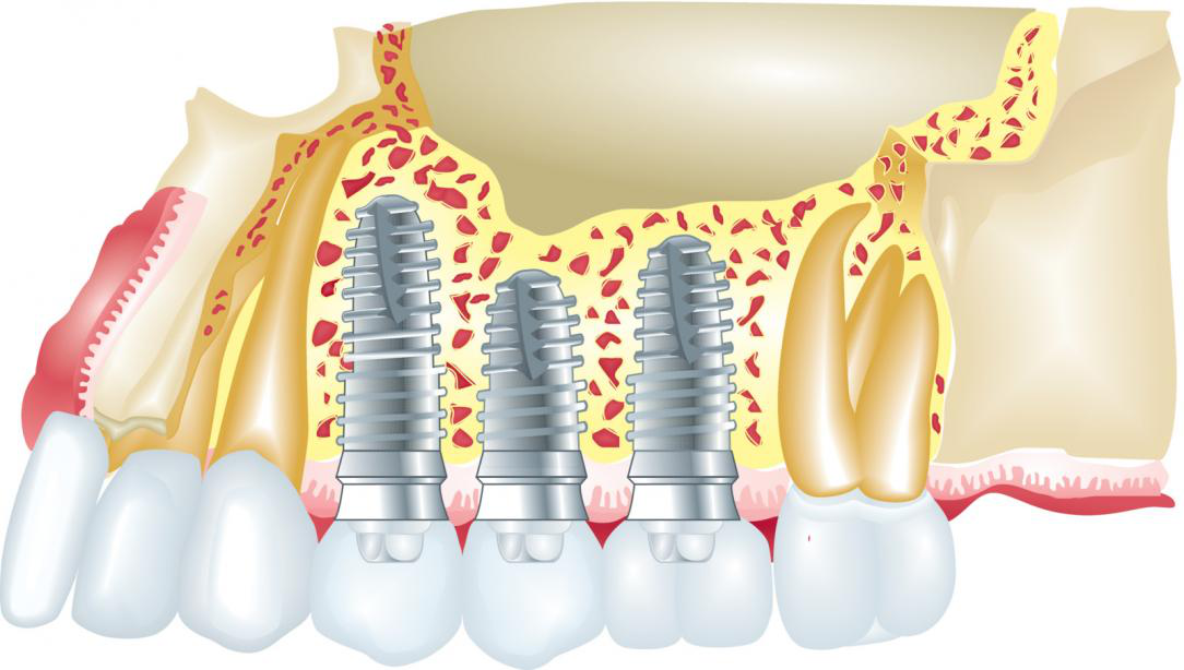 Picture showing cosmetic dentistry procedures and treatments