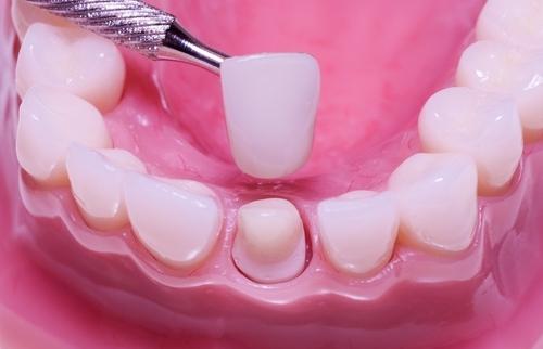 Stone Springs Dentistry